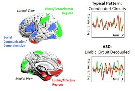 autistic brain functioning